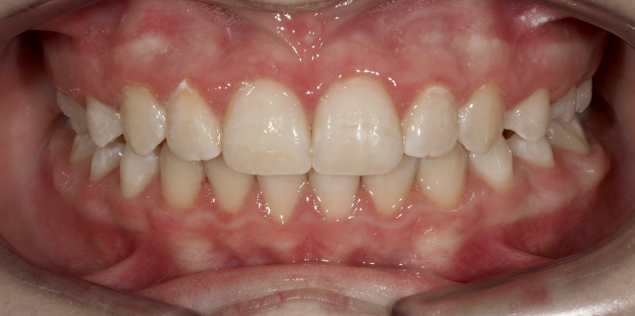 Norlmalidad dental